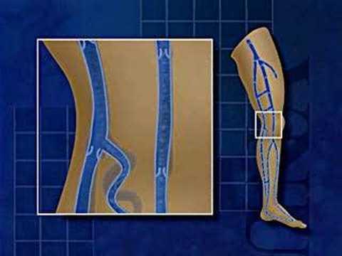 tratamentul operației de cost cu laser varicoză varicoasă de la unguent cu picioarele varicoase