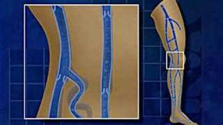 ✿ Cum se vindecă vene varicoase în picioare - 【Nepopular】 -