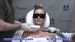 a e skin forever young bbl ipl photofacial demonstration 23 a e skin encino ca 818 835 1833