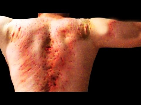 World's Worst Back Cysts, Pimples, Whitehead Scarring