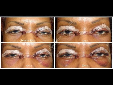 Part 2: Hooded Eyelid Surgery | Blepharoplasty | Day 1 - 8 Post-op
