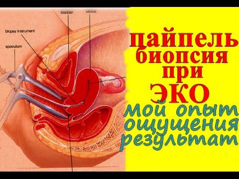 Как подготовиться к пайпель биопсии эндометрия