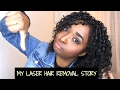 DONT DO LASER HAIR REMOVAL!! My Story & Regrets! PCOS | Chanelli