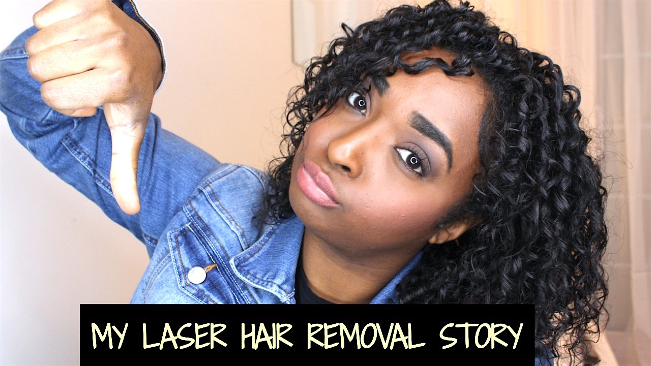 Dont Do Laser Hair Removal My Story Regrets Pcos Chanelli Youtube