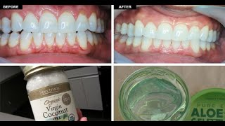 What Causes Receding Gums? + 10 Home Remedies