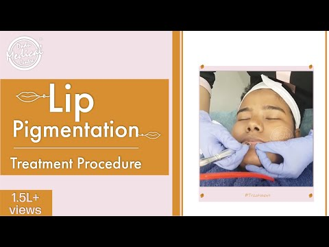 Dark Lips Treatment (Lip Pigmentation Treatment) | Lip Lightening Procedure | Black Lips Treatment