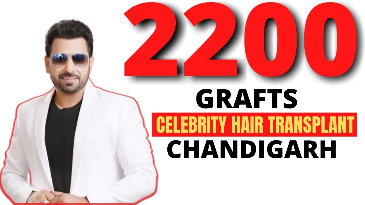 Celebrity hair transplant before and after | 2200 grafts | Chandigarh