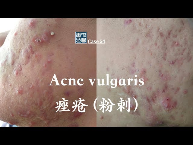 Acne vulgaris 痤疮 (粉刺), Treat Acne in Natural and Safe Way.