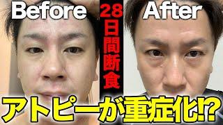 【28日間断食】アトピーが重症化!?【28日間ファスティングダイエット】