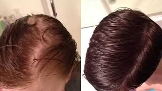 How to Regrow Hair Quickly and Inexpensively !!! - Arganrain Shampoo