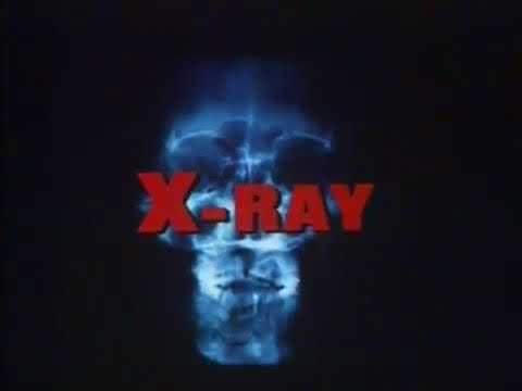 Hospital Massacre/X Ray (1982) Horror Slasher Revenge Rated R