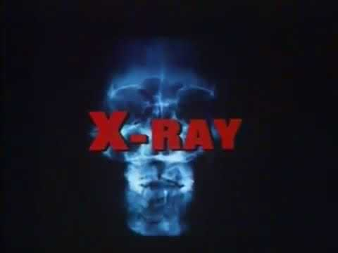 hospital-massacre/x-ray-(1982)-horror-slasher-revenge-rated-r