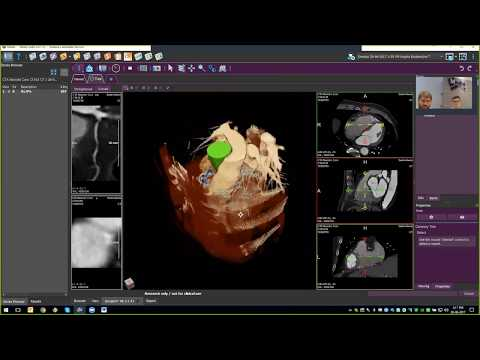 This is a recording of the Medis webinar about QAngio CT RE