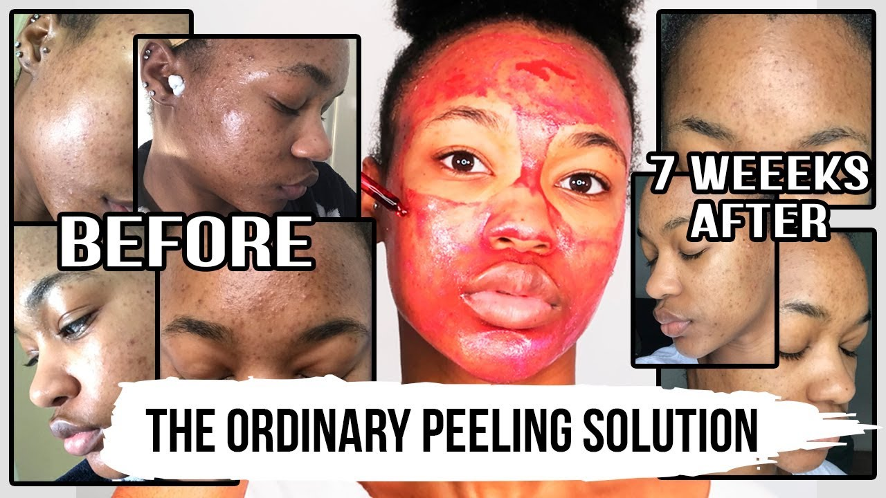 I LOOK LIKE THIS 7 WEEKS AFTER USING THE ORDINARY AHA 30% + BHA 2% PEELING  SOLUTION ♡ TASHIKA BAILEY
