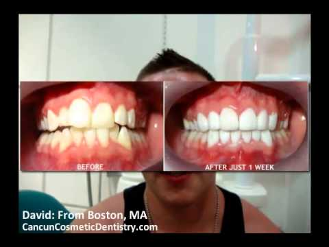 Dental Work Cancun Mexico | Cancun Cosmetic Dentistry