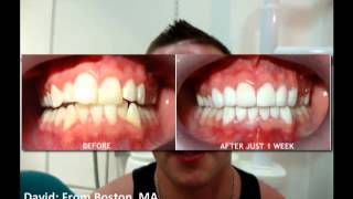Dental Work Cancun Mexico | Cancun Cosmetic Dentistry Thumbnail