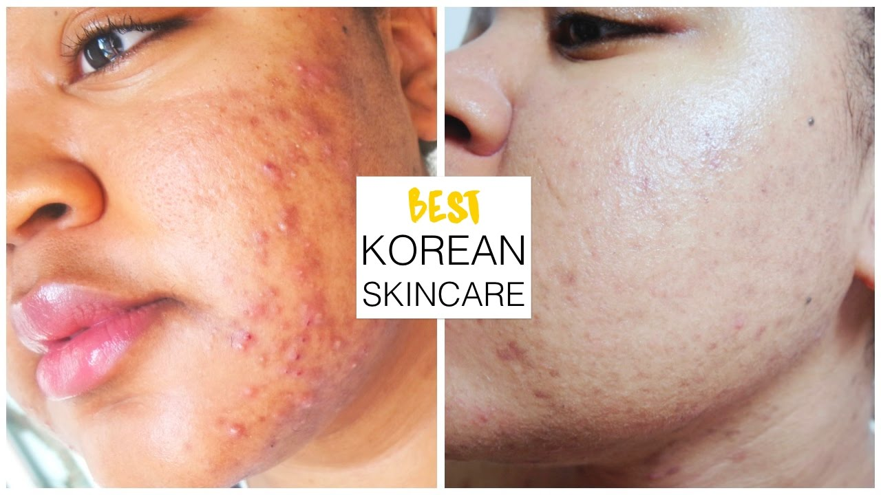 sensitive acne prone skin