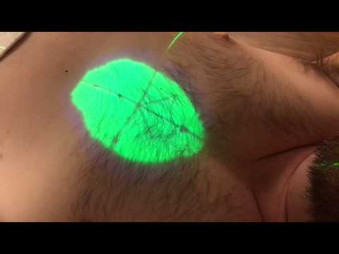 OHSU Department of Radiation Therapy - Patient Tattoo Education