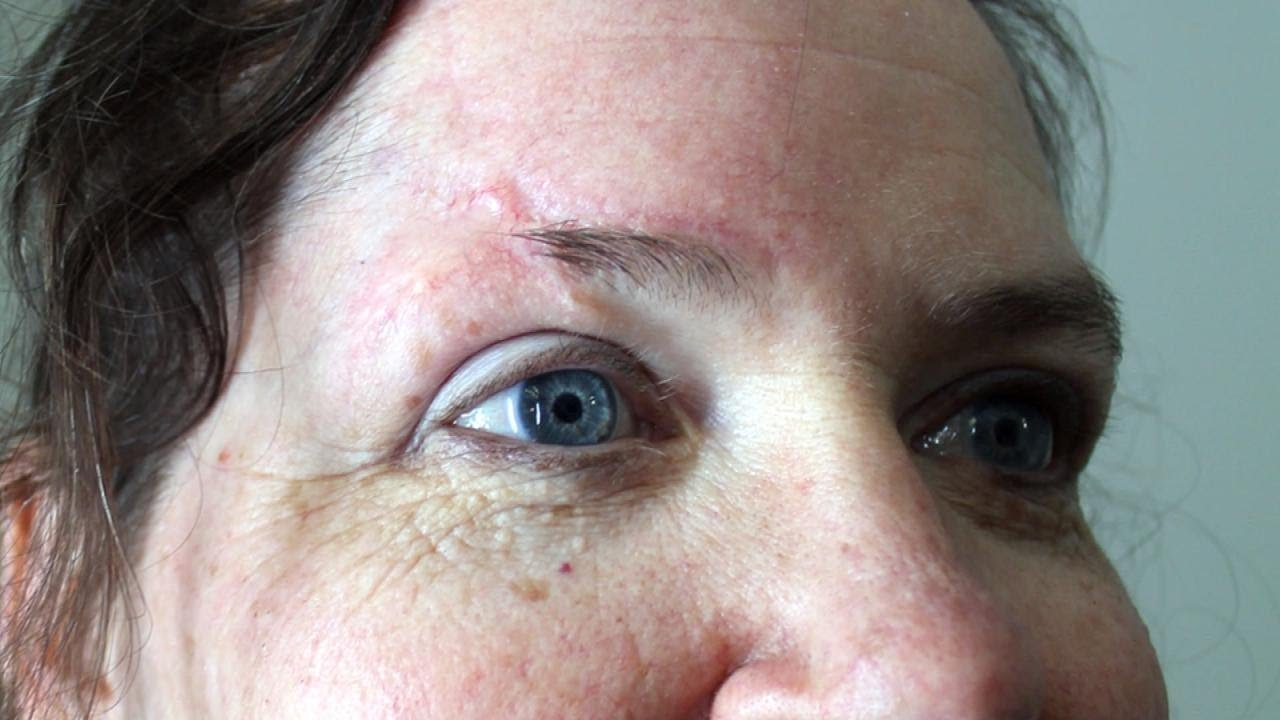 Help For Woman S Eyebrow Replacement Due To Face Scar Youtube