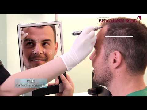 "Medizintourismus nach ""Bergmann Kord Hair Clinics"""
