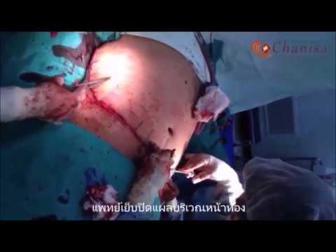 ผ่าตัดดึงหน้าท้องแก้ไขโรคอ้วนผิดปกติ