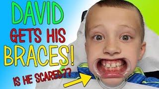 David Gets BRACES!!!!