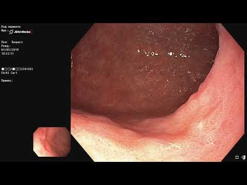 Гастроскопия, РД желудка, атрофия, метаплазия, химический гастрит курильщика.