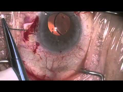 Repair of dislocated CTR and IOL with reming of capsular bag by ...