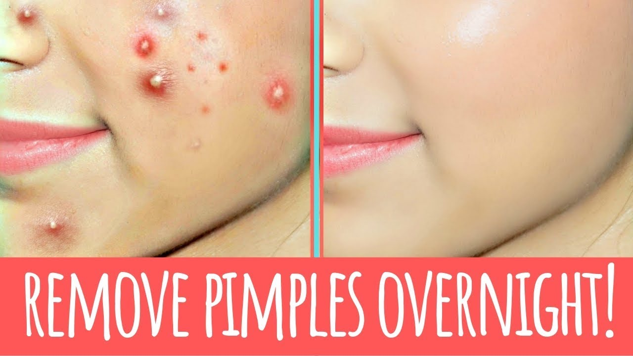 How To Remove Pimples Overnight Acne Treatment How To Remove