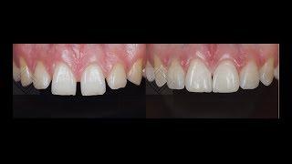 Реставрация передних зубов композитом. Закрытие щелей между зубами. Виниры до и после