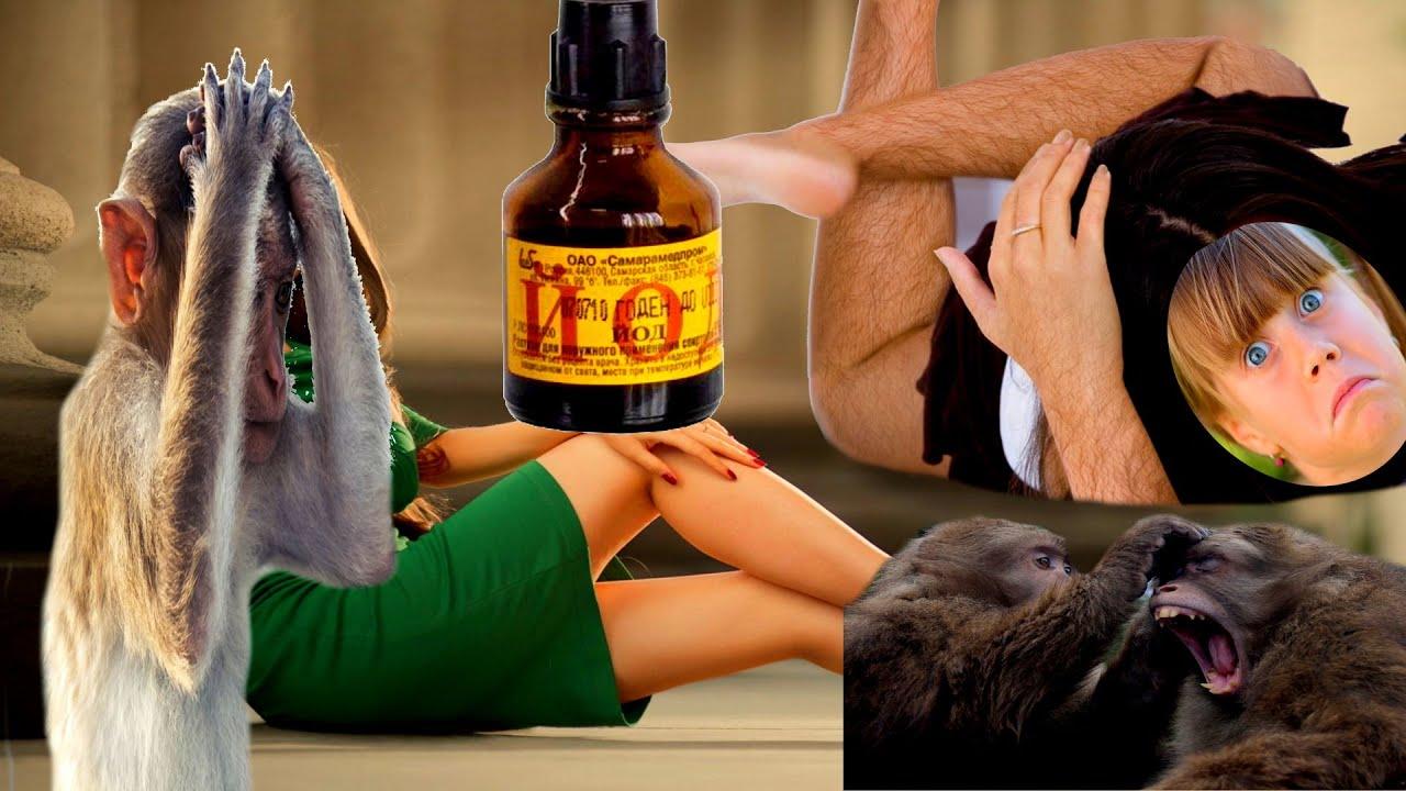 йод для роста волос и от аменореи