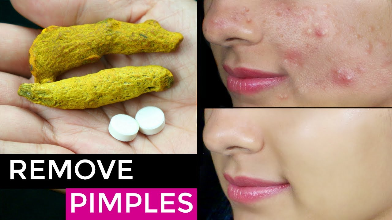 How can you remove pimples fast