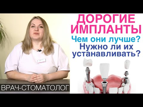 Зачем устанавливать дорогие зубные импланты? Хуже ли более дешевые импланты для зубов?