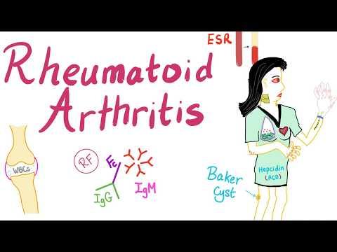 Rheumatoid Arthritis (Part 5): Atlantoaxial Instability/ Subluxation