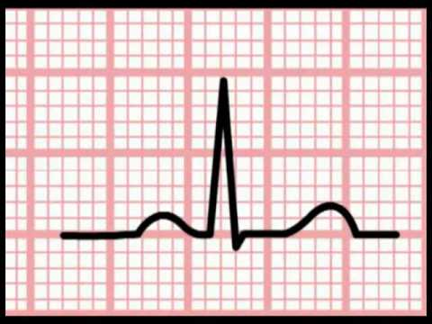 ECG Interpretation - Time and the ECG (Section 1, Part 5 ...