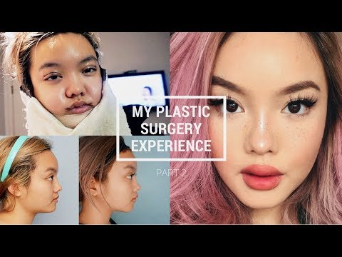 PLASTIC SURGERY IN KOREA: PT. 2 [RECOVERY + RESULTS]
