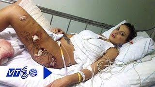 Phẫu thuật thẩm mỹ: Con dao hai lưỡi | VTC