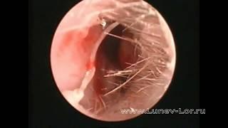 видео Конхотомия носовых раковин