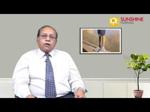 Watch Dr. C. S. Indra Mohan, Consultant General Surgeon, talk about Diabetic foot diseases