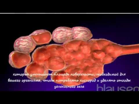 Эмфизема легких - Причины, симптомы и лечение. МЖ.