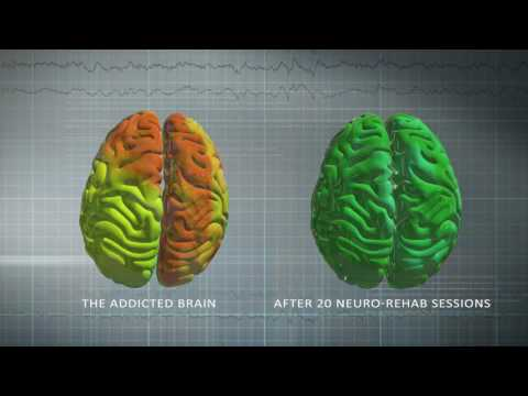 The Florida House: NeuroFeedback Training Program for Addiction Recovery