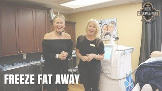 Freeze Away Fat- No Surgery and No Downtime!