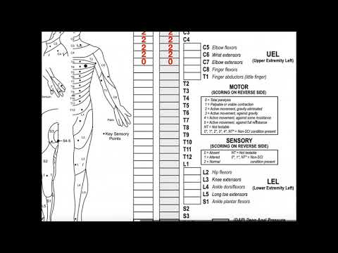 Classifying Spinal Cord Injuries using ASIA Scoring [Explanation + Example 1]