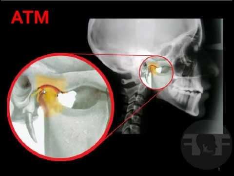 Atm Odontologia Articulación Temporomandibular - YouTube