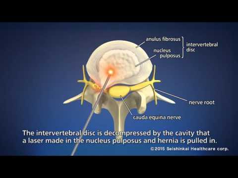 hqdefault - Laser Back Pain Treatment