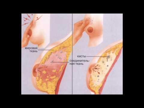 Киста в груди: лечение, симптомы, причины, удаление ::