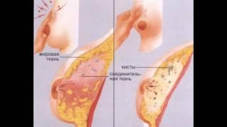 Кистозная мастопатия: симптомы.