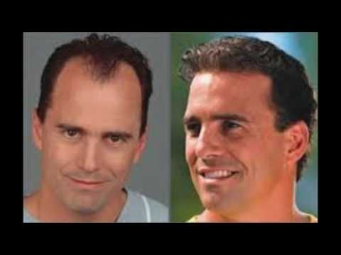Fast Re Hair Growth With Apple Cider Vinegar Hair Loss Solution