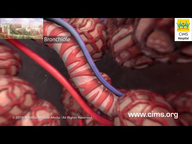 Asthma (Gujarati) - CIMS Hospital