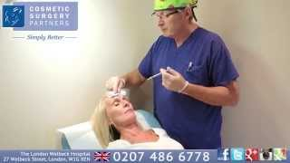 The Truth about Botox - video featuring UK Surgeon Mr Nick Percival